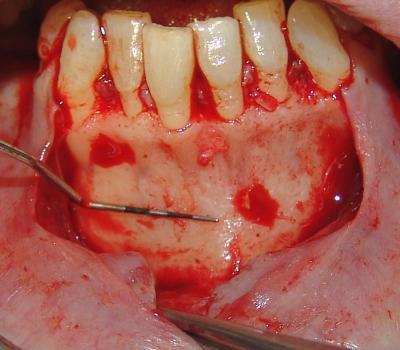 Como Controlar La Inflamacion Post Operatoria Cirugia Oral 82